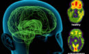 Biochemical effects of a schizophrenia-associated gene mutation